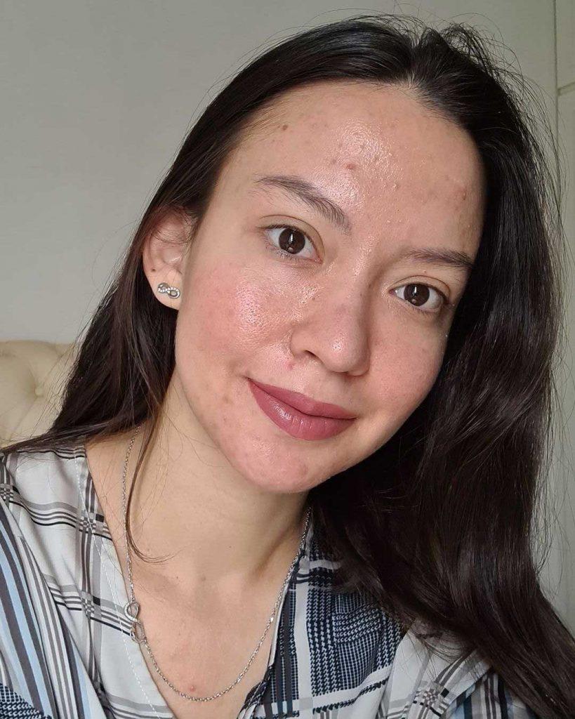 aktris artis karina dila jerawat berjerawat jerawatan